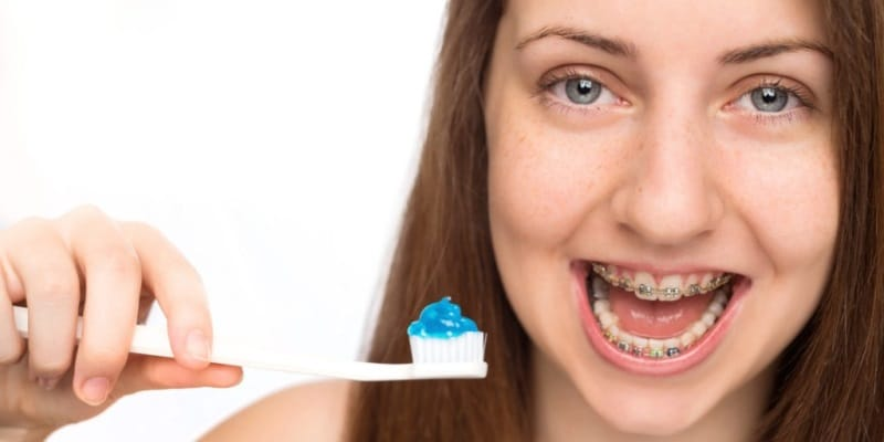 Best Toothpastes For Braces